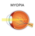 Myopia Myopia is being short sighted vector image vector image