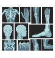 x rays human body medical equipment vector image