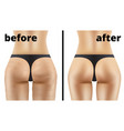 anticellulite ass massage before and after vector image vector image