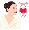 goiter enlarged thyroid endocrine disfunction vector image vector image