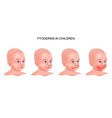 pyoderma on the baby s face vector image vector image
