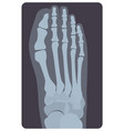superior radiograph of human right foot or limb x vector image
