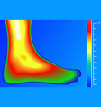human leg thermal imager with temperature scale vector image vector image