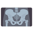 anterior radiograph of human pelvis or hip bone vector image