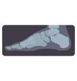 lateral radiograph of human foot or limb x-ray vector image