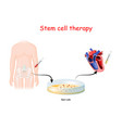 stem cell therapy vector image vector image