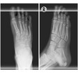 human foot ankel and leg xray top and right scan vector image