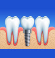 dental implant and teeth vector image
