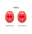 tonsils vector image