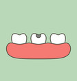 decay tooth or dental caries vector image vector image