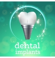 Dental implants 1 vector image vector image