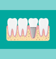 tooth restoration dental implant vector image