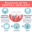 dental implant structure vector image