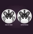 osteoporosis logo icon design vector image vector image