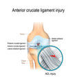 anterior cruciate ligament injury vector image vector image