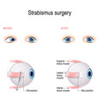 strabismus surgery eye muscle recession vector image vector image