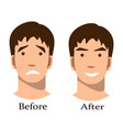 boy acne treatment before and after vector image vector image