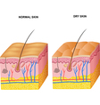 Cartoon of The layers normal skin and dry ski vector image vector image