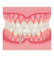 human jaw model with teeth and implant vector image