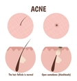 structure of the hair follicle vector image vector image