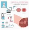 cervical ectropion ginecological medical desease vector image