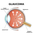 glaucoma stock vector image