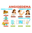 angioedema symptom causes and treatment of vector image vector image