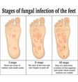 fungal infection on the feet vector image