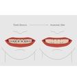 Teeth braces vector image
