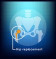 hip replacement logo icon design
