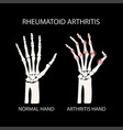 rheumatoid arthritis black medicine education vect