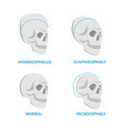 set of skulls normal and deformed hydrocephalus vector image