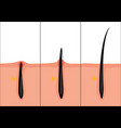 normal and ingrown hair vector image vector image