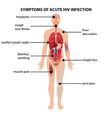 Diagram showing symptoms of acute HIV infection vector image