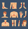 physical injury body parts shoulders trauma pain vector image vector image