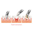 decay tooth extraction procedure 3d vector image