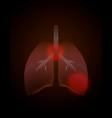 world tuberculosis day poster medical solidarity vector image