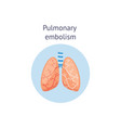 pulmonary embolism medical educational scheme vector image vector image