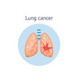 lung cancer - human pulmonary anatomy graphic with vector image