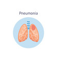 pneumonia disease diagram a healthy and damaged vector image vector image