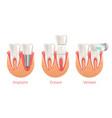 teeth procedure implant veneer crown restoration vector image vector image