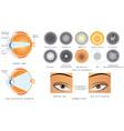 Cataract vector image vector image