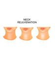 neck wrinkles rejuvenation vector image