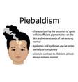 piebaldism vector image vector image