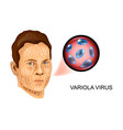 variola virus the defeat of the face vector image vector image
