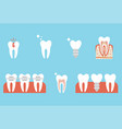 correction teeth with orthodontic braces tooth vector image