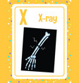 alphabet flashcard with letter x for x-ray