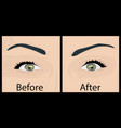 wrinkles and fine lines under eyes to remove vector image vector image