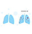 coronavirus covid19-19 lungs are healthy vector image vector image