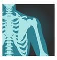 x-ray shot shoulder human body bones vector image